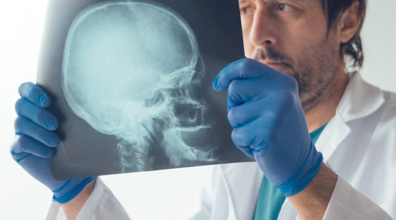 What brain injuries related to car accidents really entail